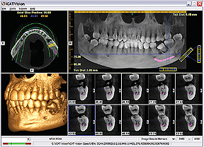 3D CBCT dentaire